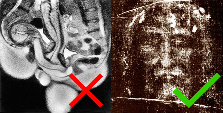 MRI of sexual juxtaposed with the Shroud of Turin